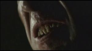 My god Kane, c'est qui ton dentiste? Isaac Yankem?